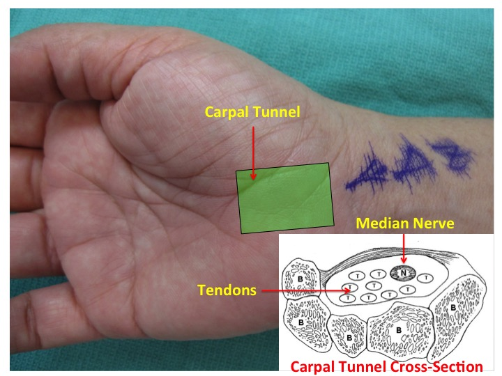 Carpal Tunnel Syndrome1 Dr Andrew Zhang