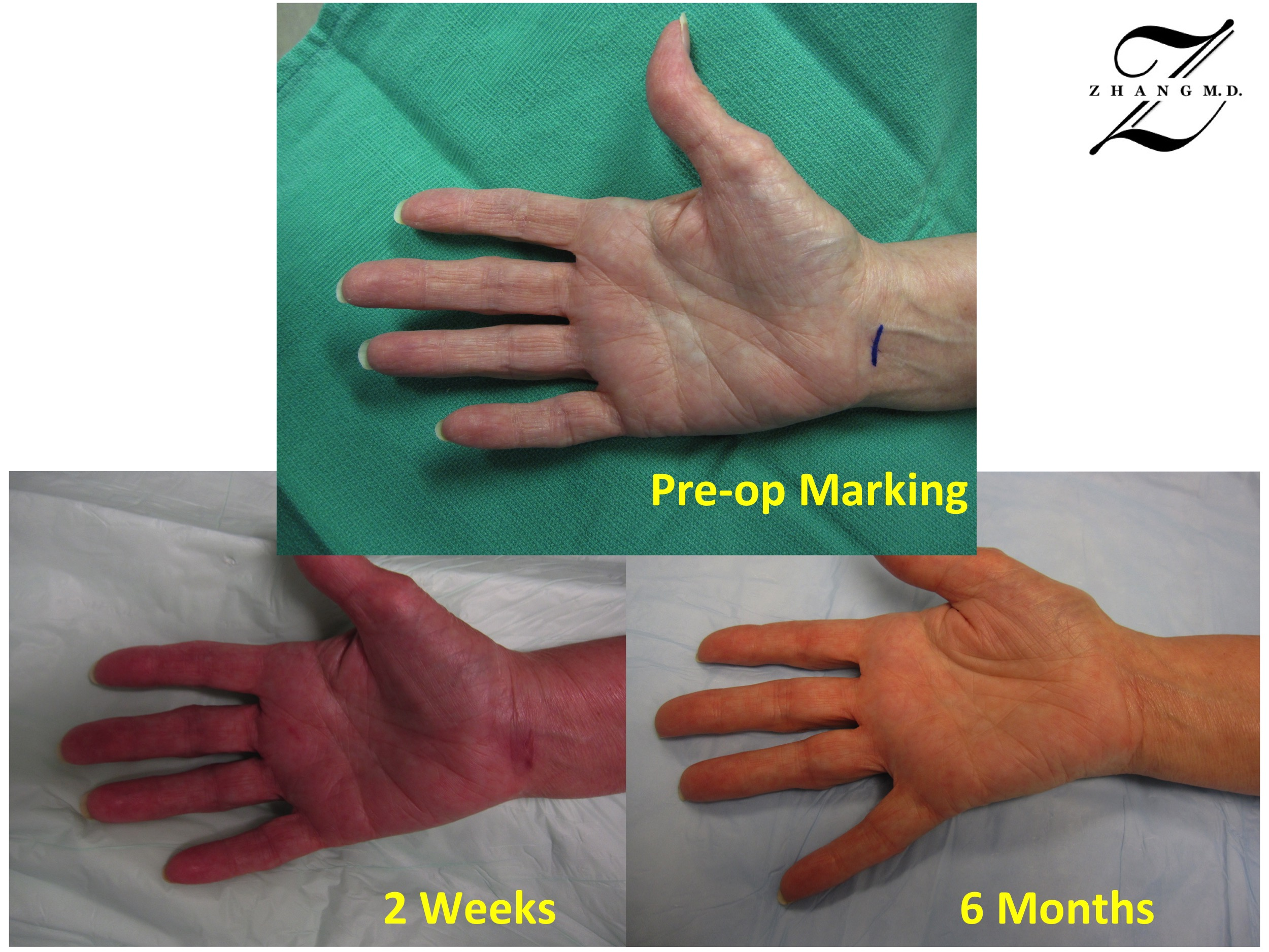 Carpal Tunnel Surgery >> Carpal Tunnel Syndrome Dr Andrew Zhang